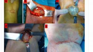Treatment of baker cyst, by using open posterior cystectomy and supine arthroscopy on recalcitrant cases